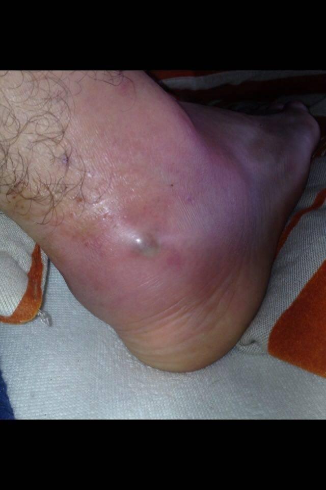 Noha Richarda Grznára po infekcii (Foto: Archív RG)